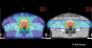 Die Strahlungsverteilung beim Prostatakarzinom im Vergleich: links eine perkutane Strahlentherapie mit Photonen (IMRT), rechts die Bestrahlung mit Protonen (IMPT), die eine deutlich geringere Belastung des umgebenden Gewebes aufzeigt.