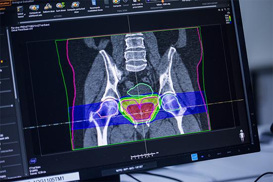 Bei der Bestrahlungsplanung wird zu schonendes Gewebe wie z.B. die Blase oder der Darm berücksichtigt, damit der Protonenstrahl diese Bereiche nach Möglichkeit nicht durchdringt.