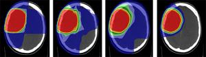 Vergleich von vier Behandlungsplänen – Supratentorielles anaplastisches Gliom