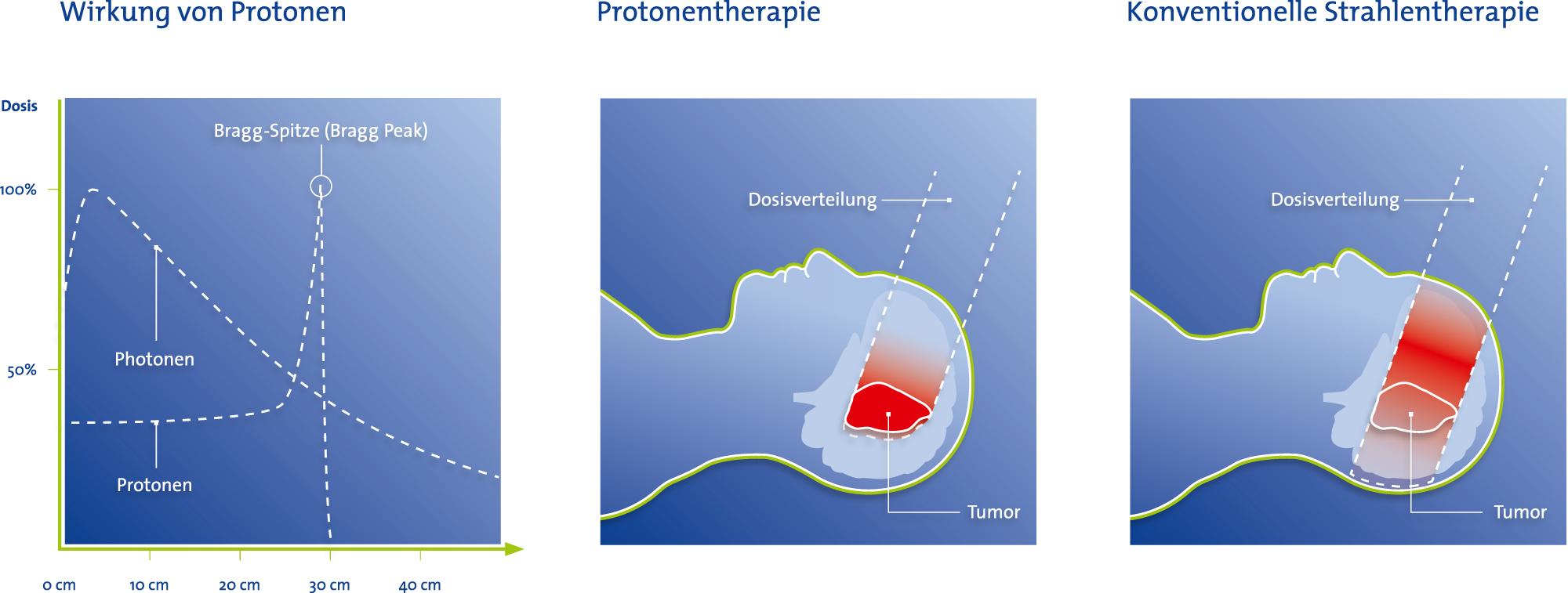 Wirkung der Protonentherapie