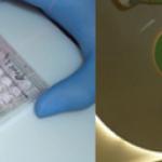 Grundlagenforschung und klinische Praxis an einem Tisch