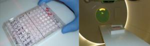 Tumorzellen im Strahlenfeld und Behandlungsraum im WPE.